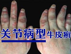 关节型银屑病需强化骨骼.jpg