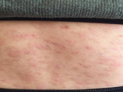 腿部上患牛皮癣的原因都有哪些呢